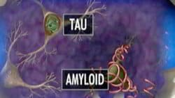 proteina beta amiloide e tau
