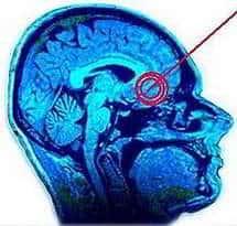 cirugia cerebral