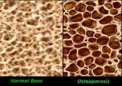 huesos con osteoporosis