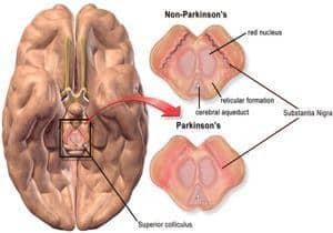 ilustración cerebro con parkinon