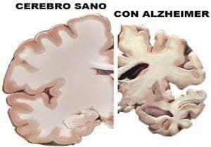cerebro sano y con alzheimer