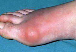el acido urico en el embarazo acido urico por todo el cuerpo remedios caseros para gota en el pie