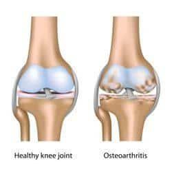 osteoartritis o artrosis de rodilla