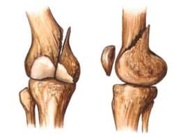 fractura de hueso
