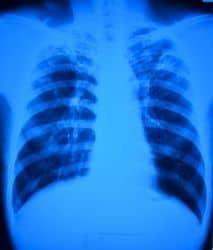 radiografía de paciente con tuberculosis