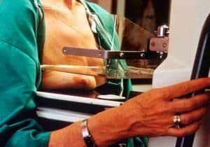 mamografía diagnóstico cáncer mama