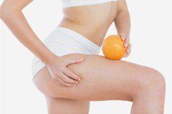 celulitis piel de naranja