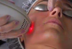 tratamiento láser para la piel