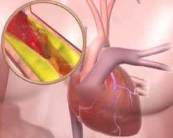 Tipos de hipertensión arterial