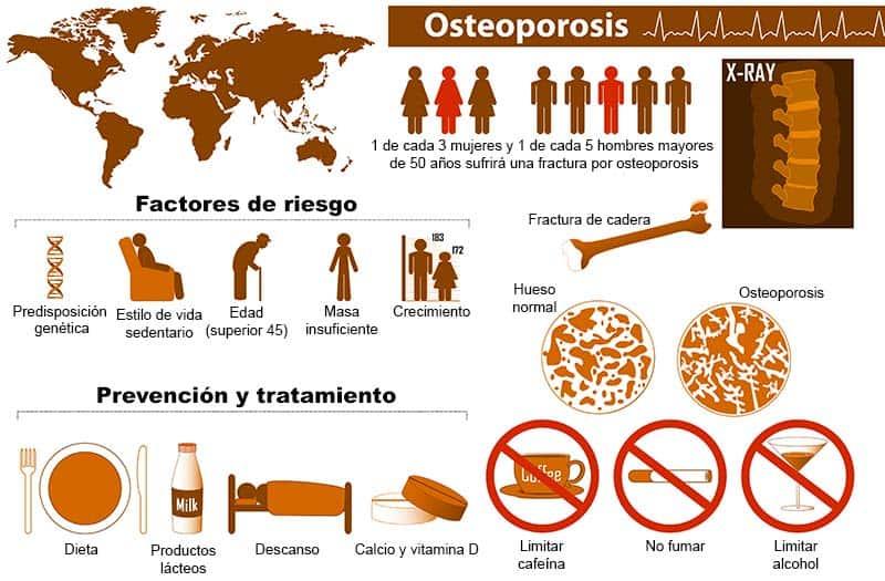 Infografía sobre la osteoporosis