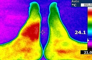 imagen temperatura corporal cuerpo