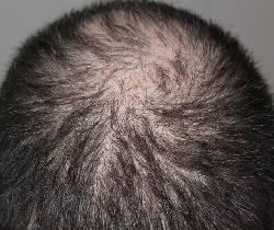 caída cabello - alopecia