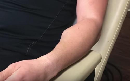 lipoma en el brazo
