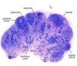 linfoma y estructura de ganglio