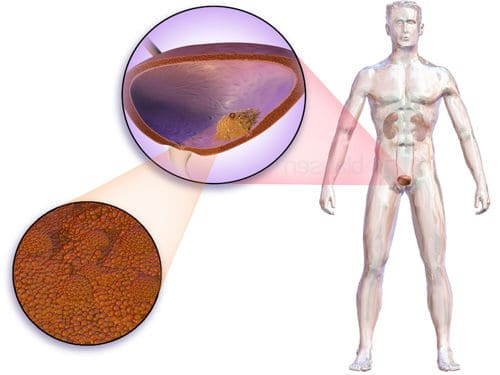 ilustración sobre el cancer de vejiga