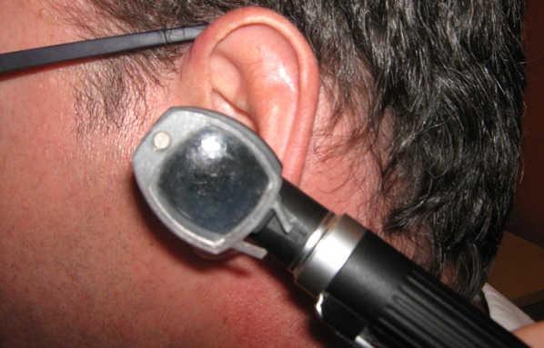 otoscopio en un oído