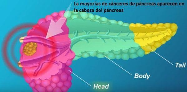 cáncer que aparece en la cabeza del páncreas
