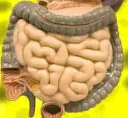 enfermedad de colitis