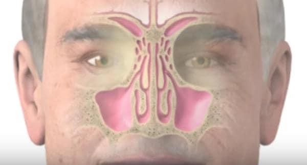 imagen sobre animación de la sinusitis