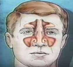 dibujo sobre la sinusitis