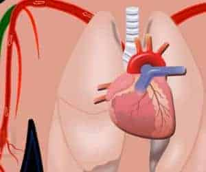 animación sobre la presión arterial