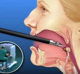 cirugía en cáncer de boca y garganta