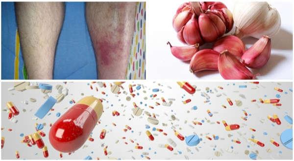 tratamientos para la celulitis infecciosa