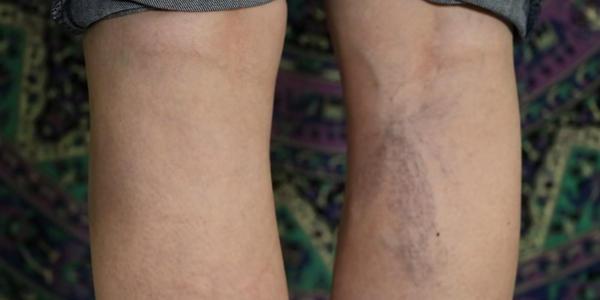 varices en piernas