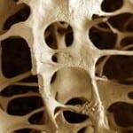 Prevención de la osteoporosis durante la menopausia
