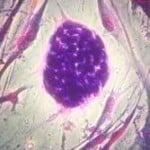 Descubrimiento podría ayudar a la recuperación de la memoria de las personas afectadas por la enfermedad de Alzheimer