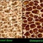 La osteoporosis: síntomas, tipos y tratamientos