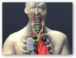 CVRx Inc dispostivo hipertension