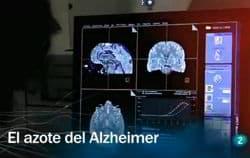 El azote del alzheimer- Redes