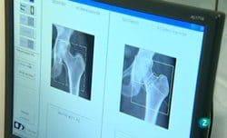 La osteoporosis - Para todos La 2 - Debate