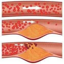 colesterol en una arteria -  ateroesclerosis