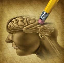 alzheimer - demencia