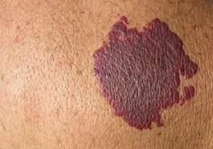 mancha piel de nacimiento