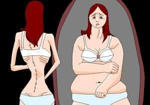 anorexia y sus causas