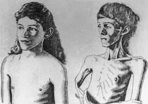 dibujo persona con y sin anorexia