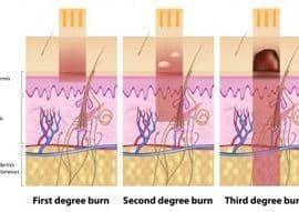 quemadura piel según grado