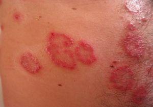psoriasis en la piel