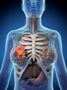 ilustración 3D sobre cáncer de mama