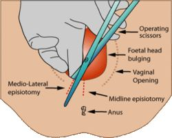 episiotomía y embarazo
