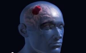 ictus o accidente cerebrovascular hemorrágico
