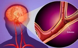 ictus o accidente cerebrovascular isquemico