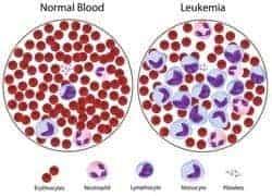 cáncer de leucemia