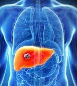 Como aceptar polisorb de la psoriasis
