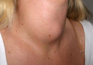 síntomas de las tiroides