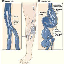 dibujo varices en una pierna