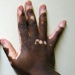 mano con vitiligo